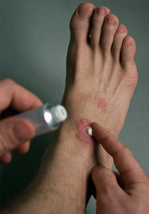 Gentle Natural Remedies for Psoriasis