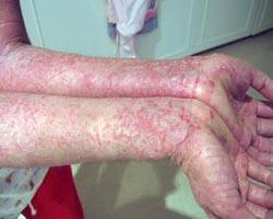 Dry Skin Rash