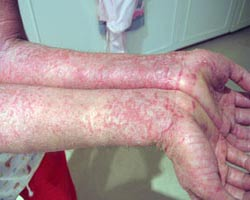 8 Common Types of Rashes | Lifescript.com