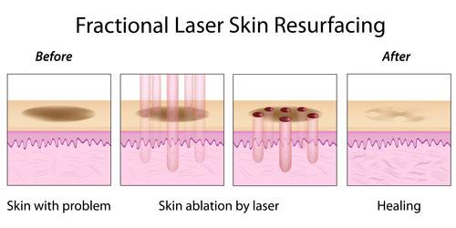 acne laser treatments