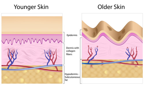 Causes of Age Spots