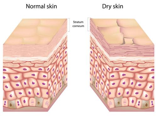 Normal Skin Vs Dry Skin