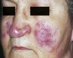 lupus face rash