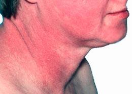 rash on face