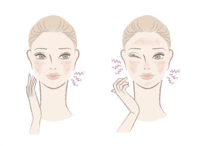 rosacea cures