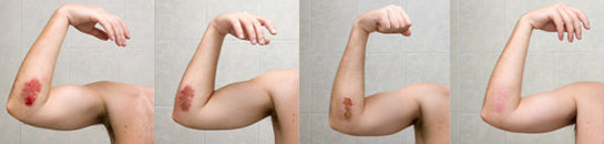 Scarring Healing Removing Scars Scar Tissue Healing