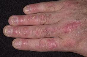 Psoriasis Nail Skin