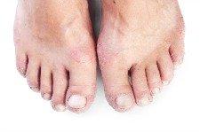 Picture of eczema rash on feet