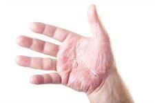 Photo of Hand Eczema