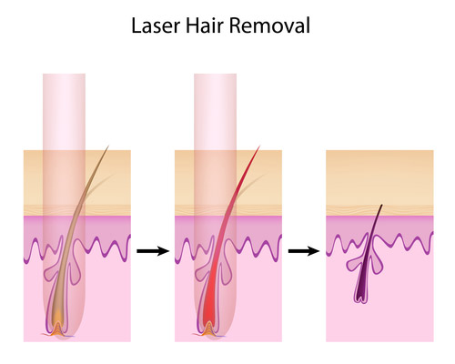 Why Use Home Laser Hair Removal?