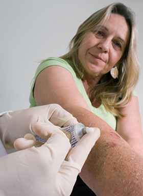 Clearing Sebhorreic Dermatitis